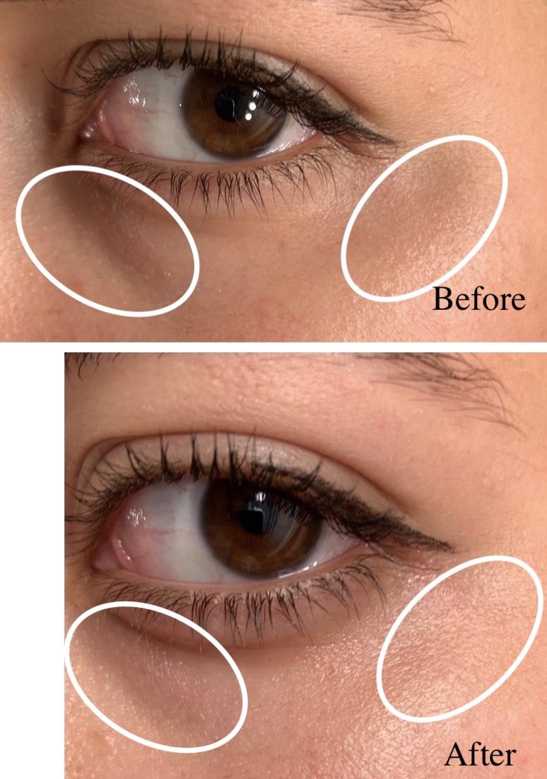 Review Tosowoong Sos Spot Whitening Vita Vitamin Eye Cream