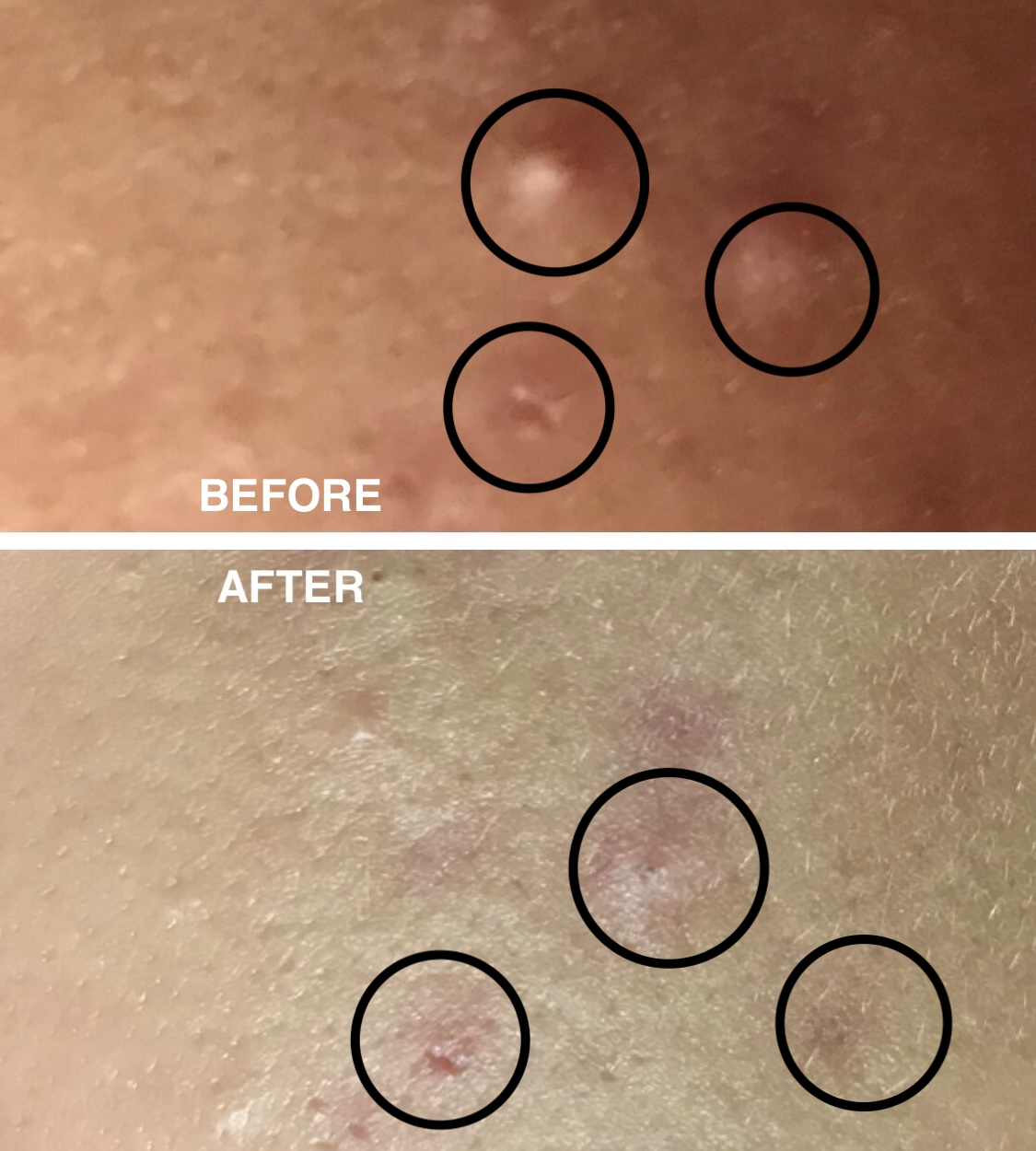 - As you can see, this dramatically reduced my inflamed cystic acne in just one night. I was concerned about the safety of using this product for way more than the amount of time recommended, but after some research, It seems that a lot of people actually use it this way. Plus the product itself is made of 60% of the same material used in the pink spot which is used overnight. Either way, I recommend trying it on just one pimple for a few days and seeing how your skin reacts.These pictures are just one day apart, before and after use (I'm sorry for the quality but I tried it under natural lighting and during the night it's pretty dark... obviously. And the angles differ in the first picture a bit). As you can see, most of the puss from the acne came out. The whole process also sped up the healing and there was no need for an abrasive extraction.