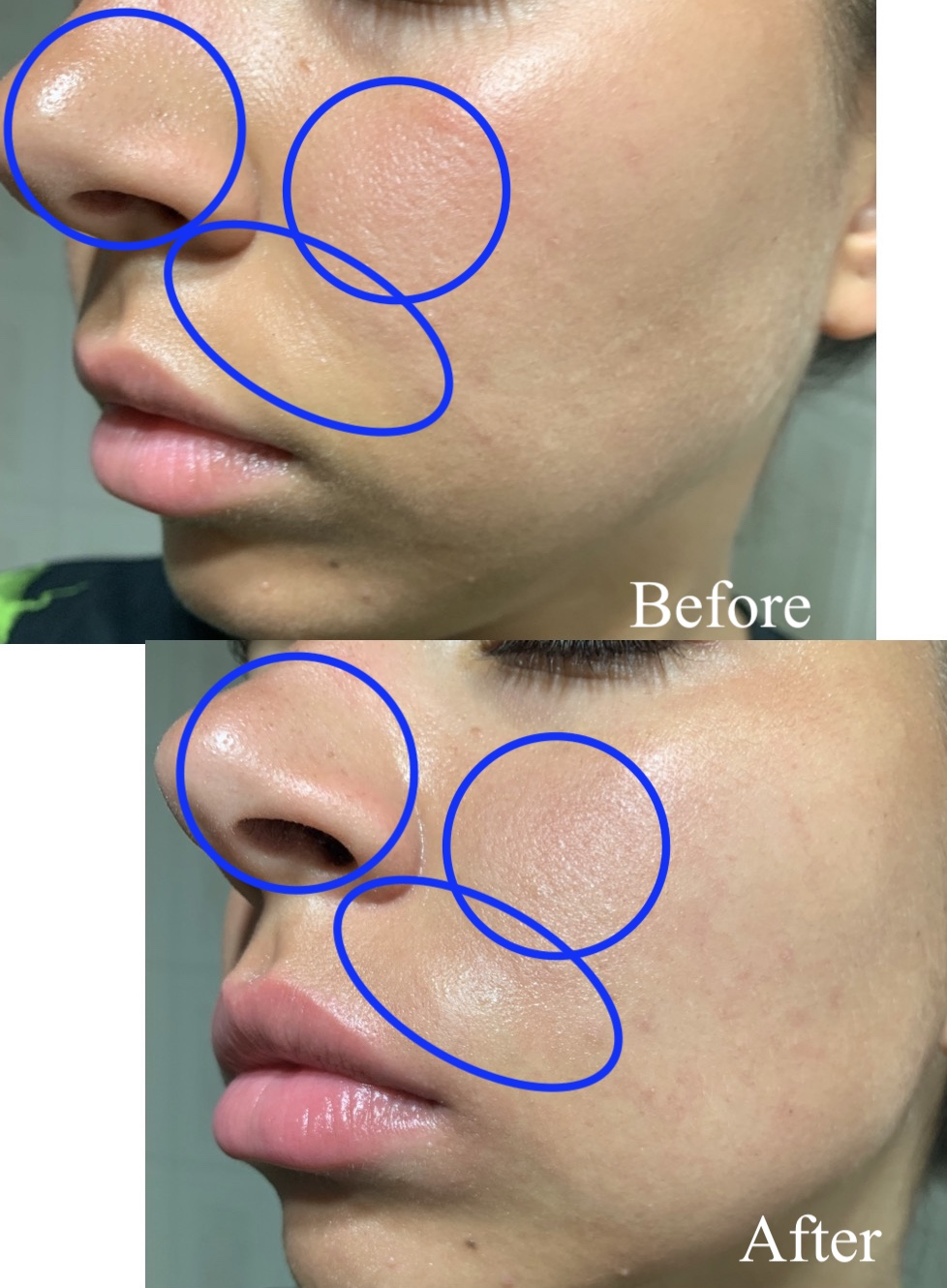 Some benefits that you'll get from the first use: - +Skin texture is greatly improved+Pores are less noticeable+Fine lines are less noticeable+Lips are plumped up and lines are less noticeable++Before and After here is after 5 minutes apart.