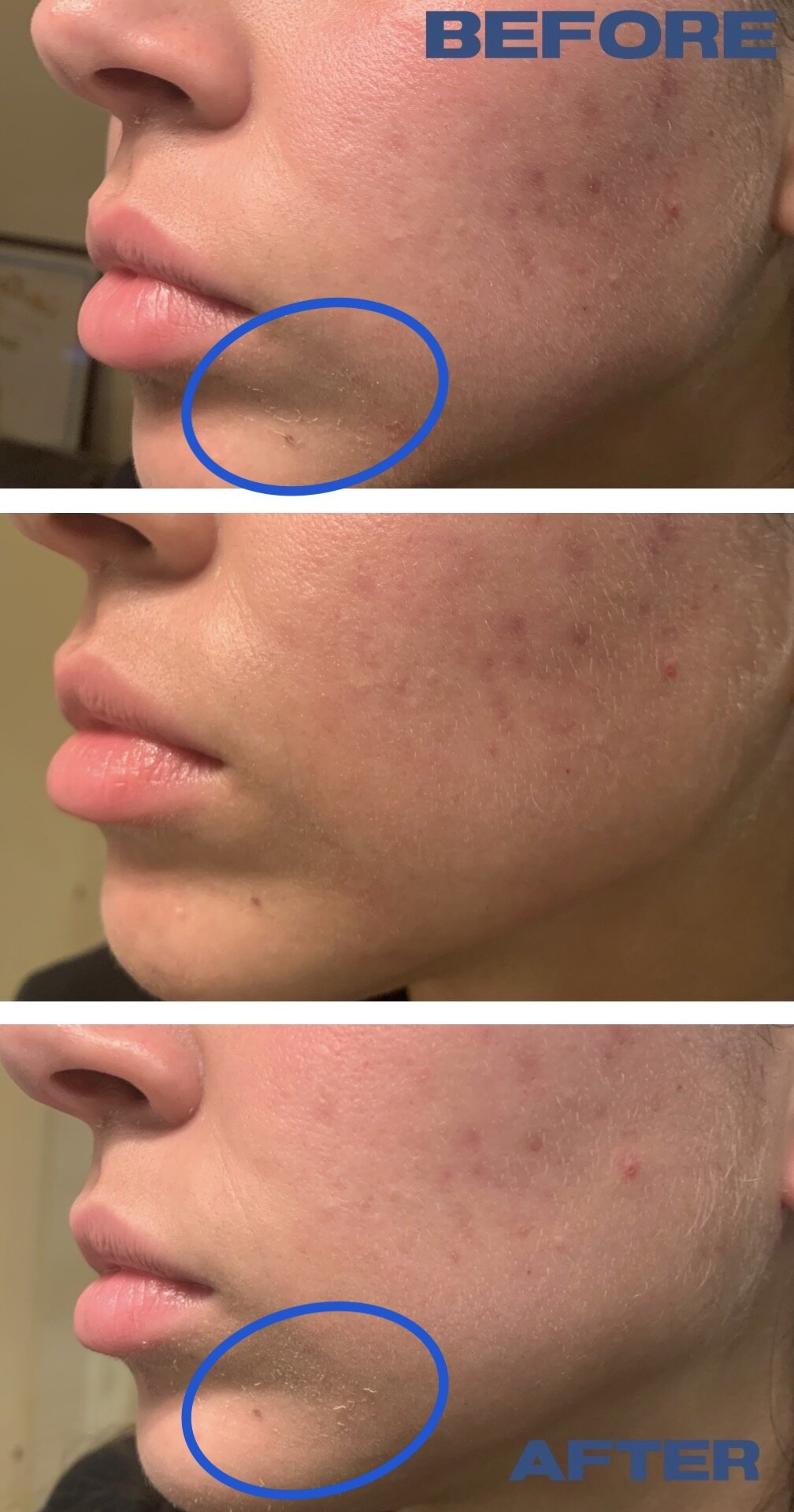 - I did not get clogged pores nor did my skin breakout but some people have reported that this broke them out. I could not find any corrolation with Astragalus Membranaceus Root Extract and acne (unless you're alergic). People seem to blame the presence of silicones in the product, but Bis-PEG-18 Methyl Ether Dimethyl Silane is water soluble which makes it even more suitable for sensitive skin (usually silicones are oil soluble) and silicones get a bad reputation without a scientific basis (they're some of the most breathable synthetic layers out there). Perhaps the people with these reactions are alergic to one of the ingredients or sensitized to silicones. If you've had a bad experience with silicones in the past or you want to stay in the safe side because you're acne prone, but still want to try this product out you can always buy the 4.90$(30ml Link) version first and test it out.Would I recommend this? Only if you have oily skin and didn't like the klairs toner. And maybe if you live somewhere really hot where you only want a bit of simple hydration. Otherwise, stick to the klairs one.