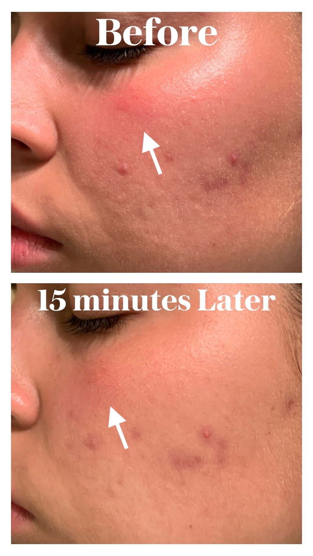 [REVIEW] Huxley Keep Calm Healing Mask (Before and After)