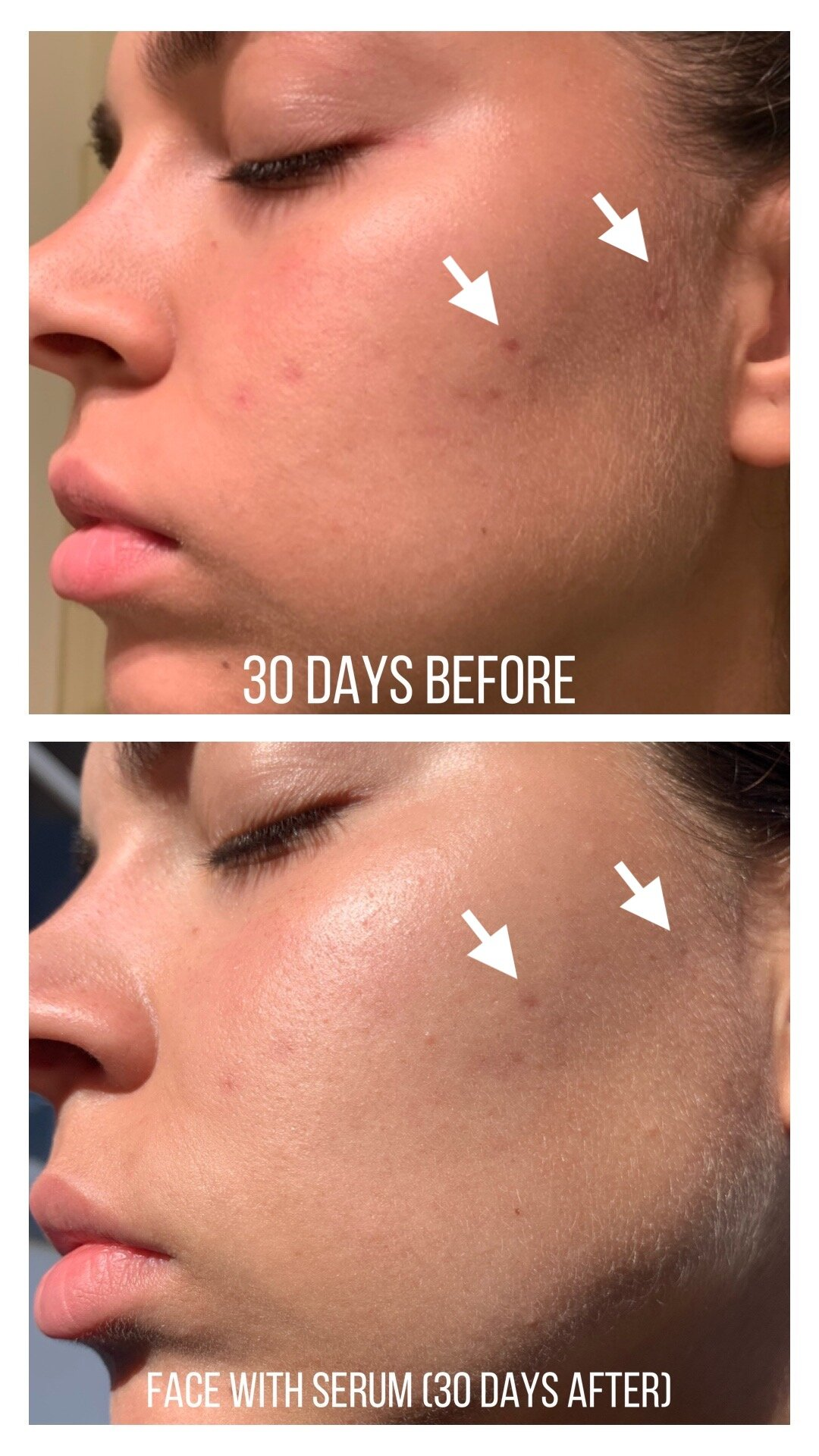 [REVIEW] THE ORDINARY Niacinamide 10% + Zinc 1% (Before and After)