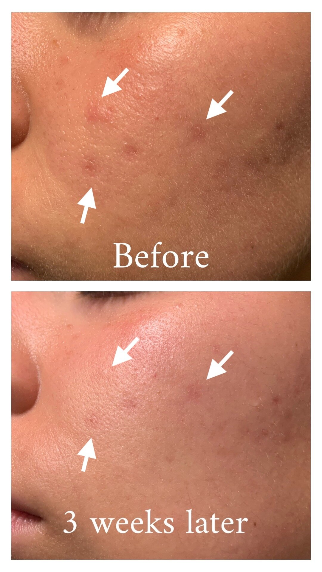 The Plant Base Time Stop Collagen Ampoule Before and After