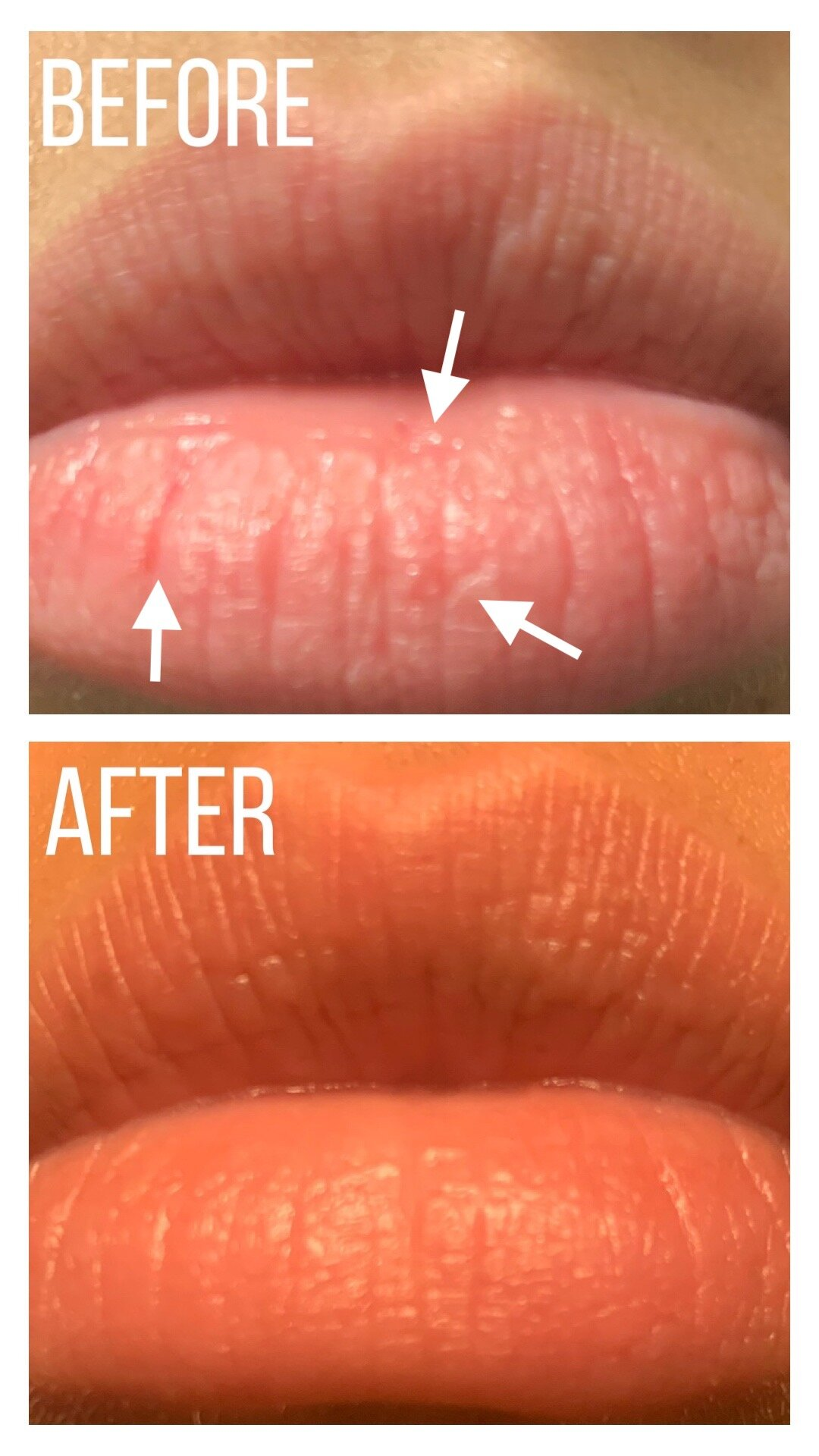 Before and After lip mask