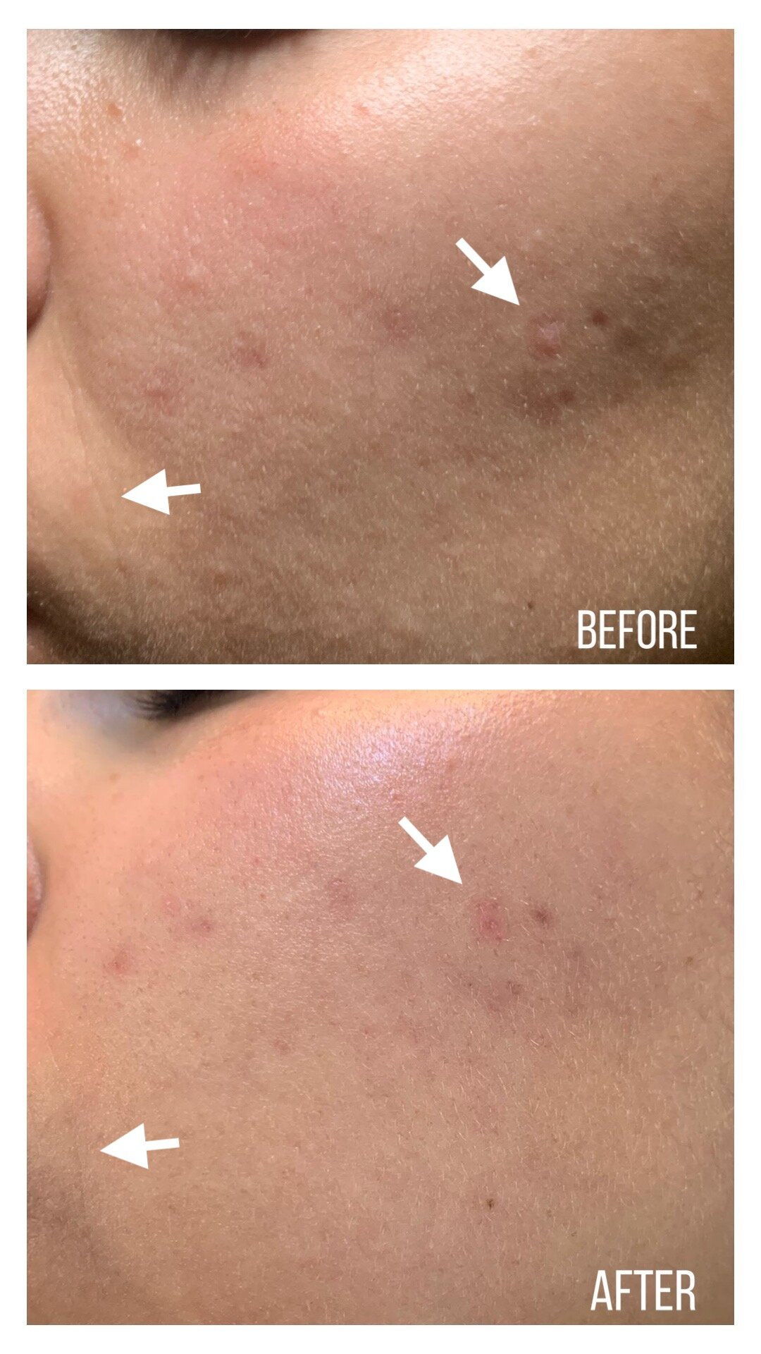 Before and After skin texture left face