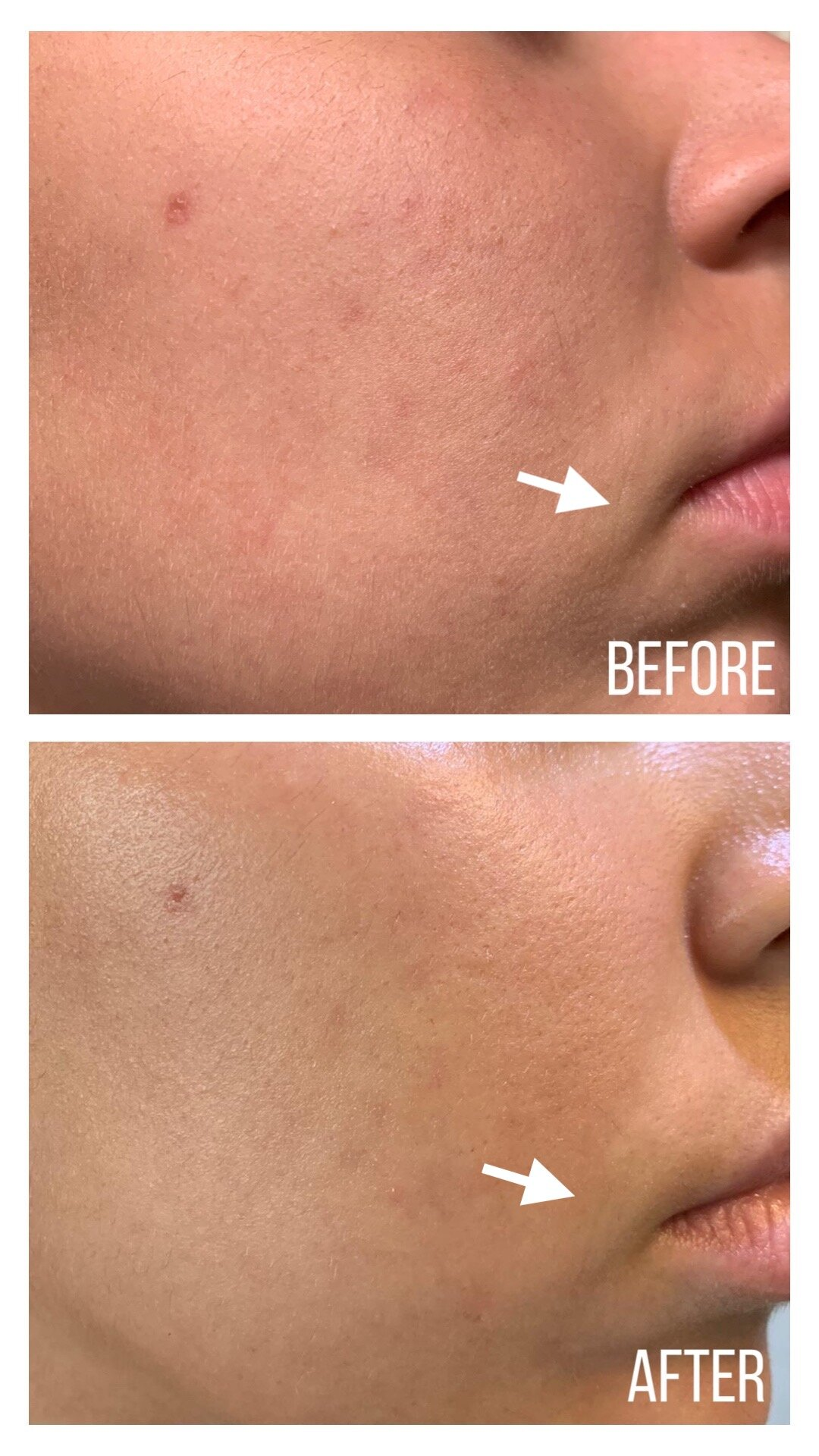 Before and After skin texture right face