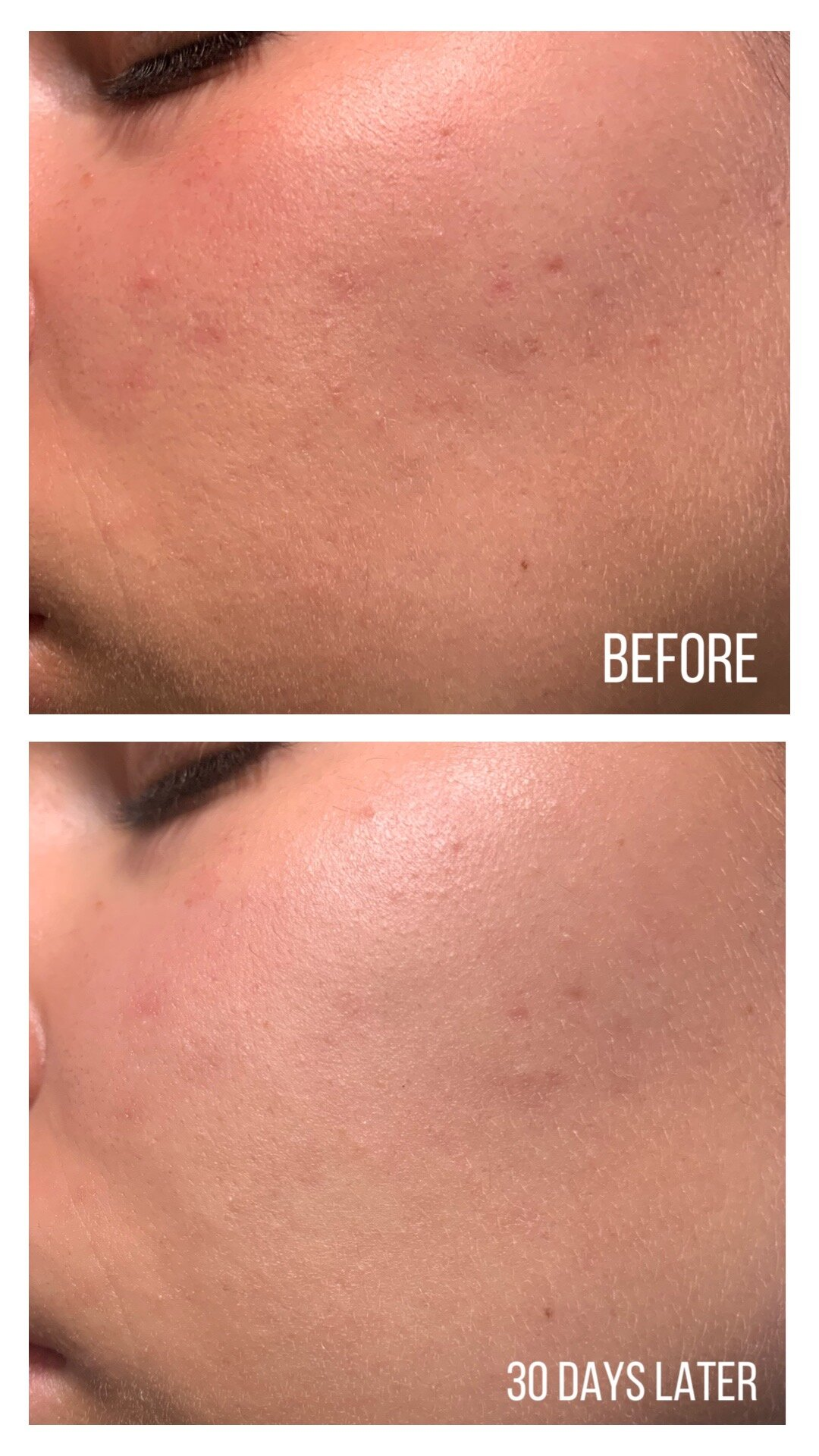 AXIS-Y Dark Spot Correcting Glow Serum Before and After