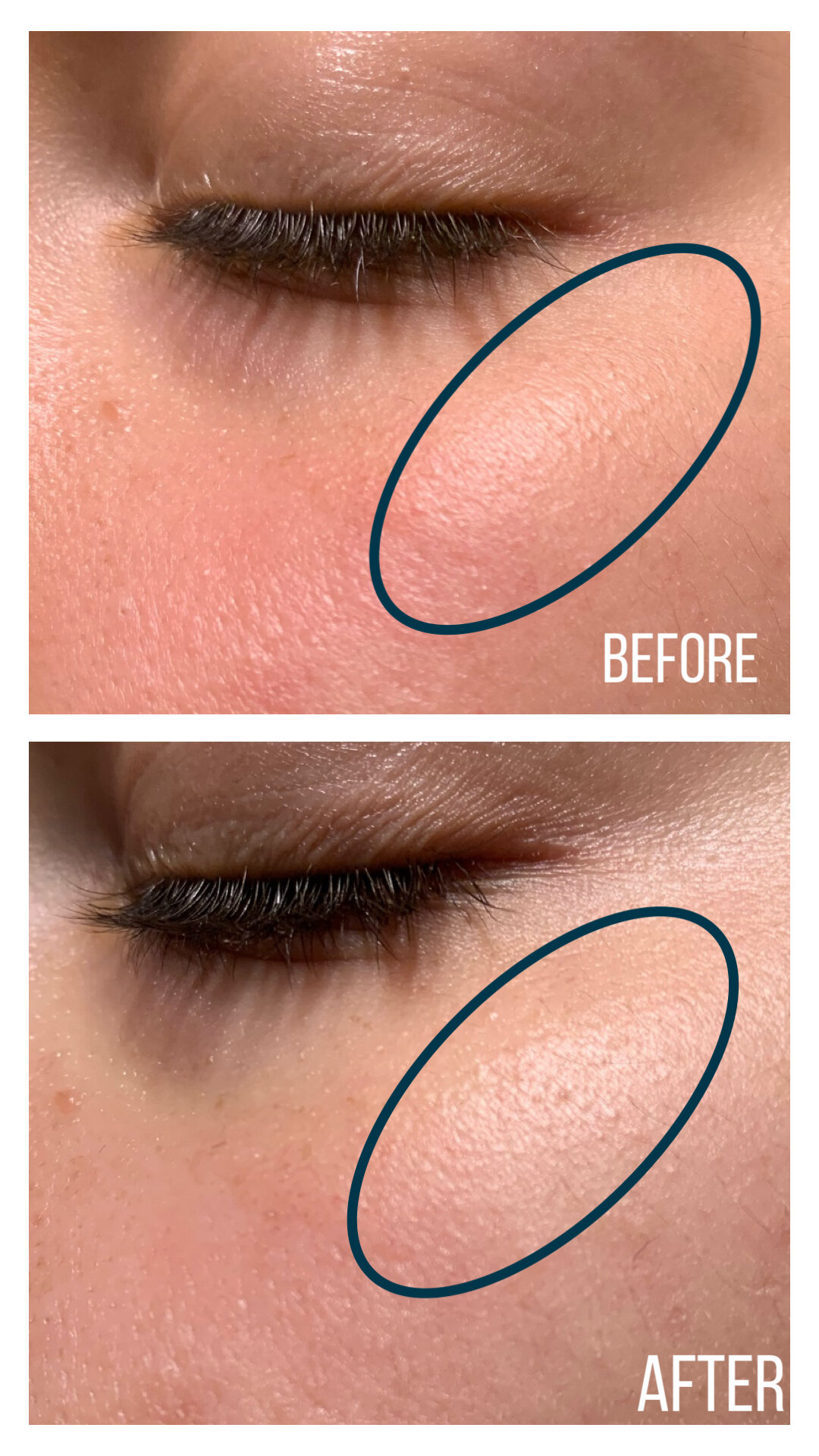 L'Oréal Revitalift Laser X3 Anti-Ageing Power Eye Cream (Before and After)