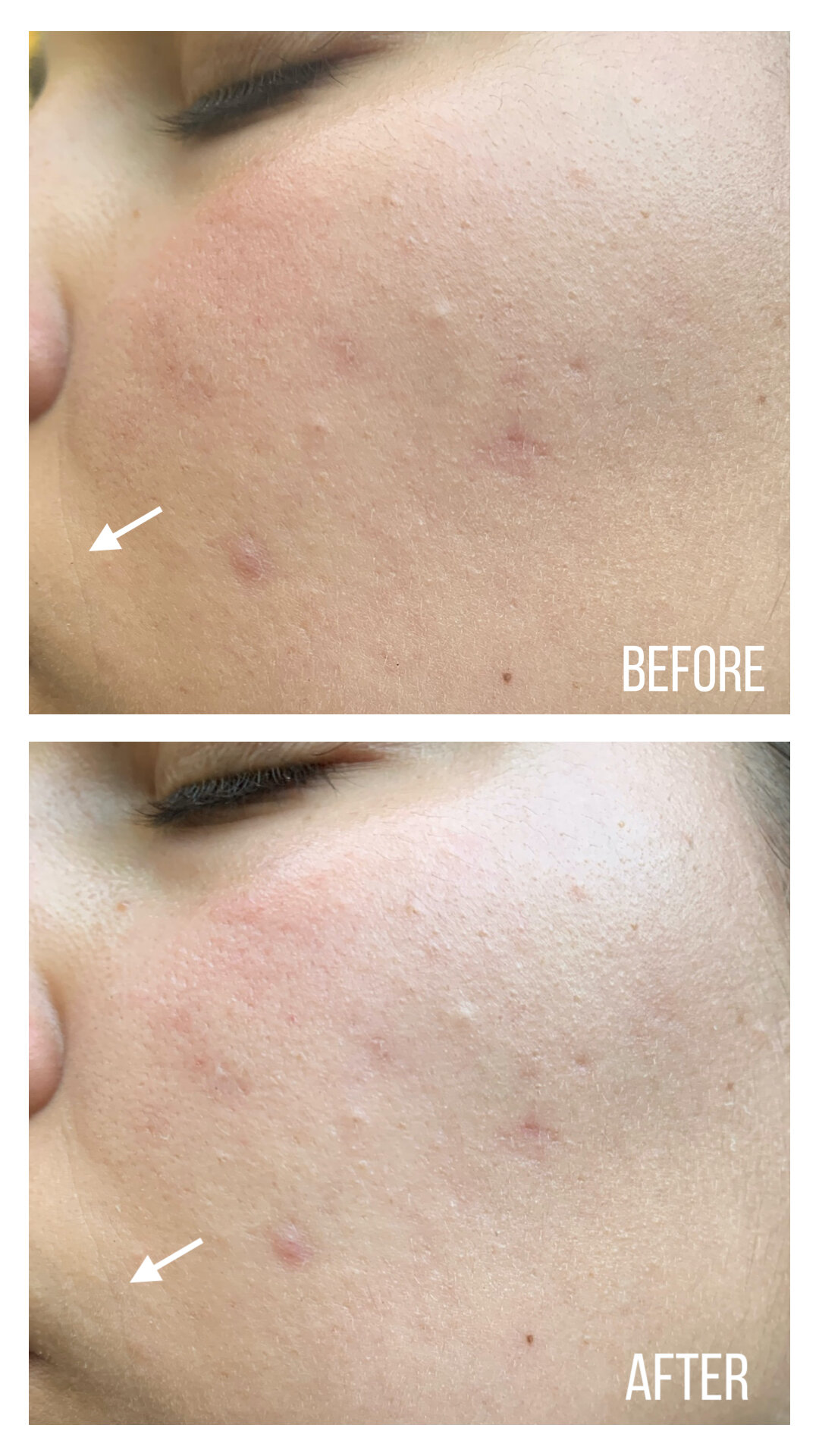 Krave Beauty Oat So Simple Water Cream (Before and After)