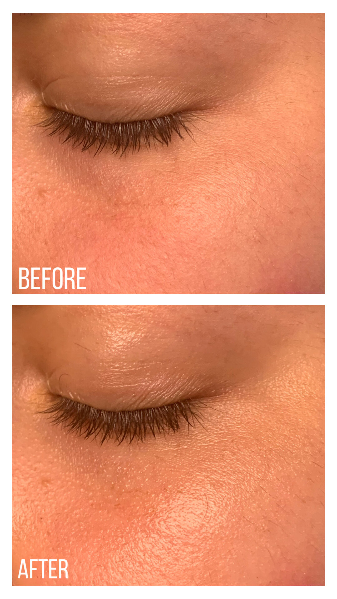 Kiehl's Avocado Eye Cream (Before and After)