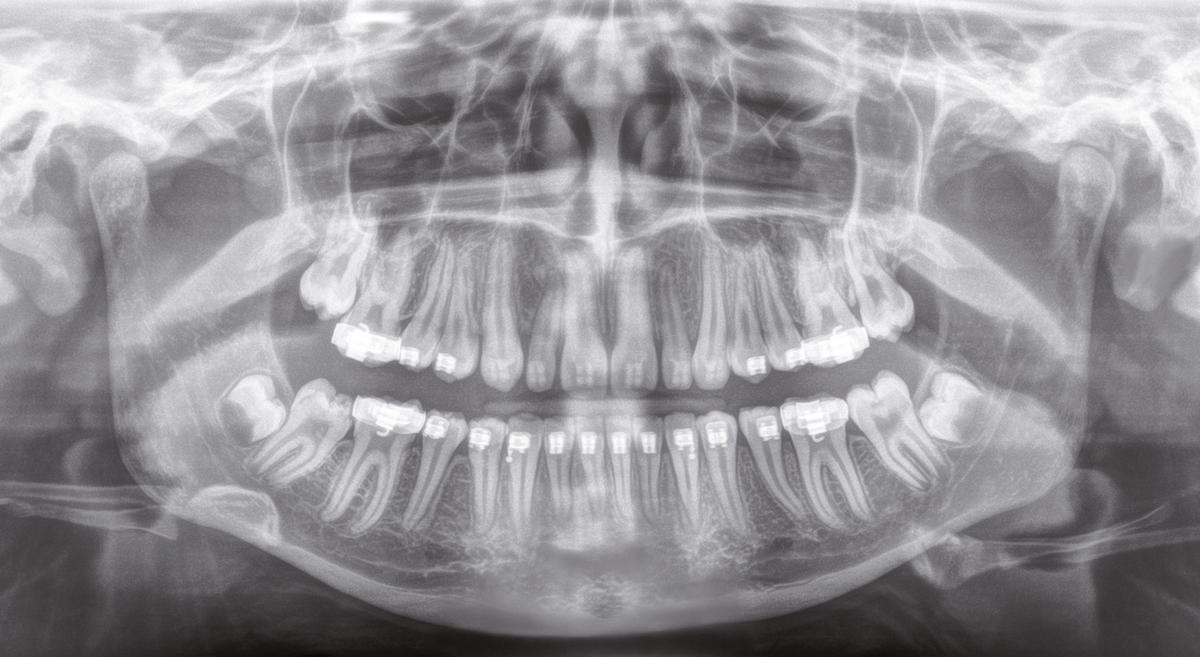 Image credit: Sirona - Orthophos XG 3D w/ Astra Hi-Def Sensor