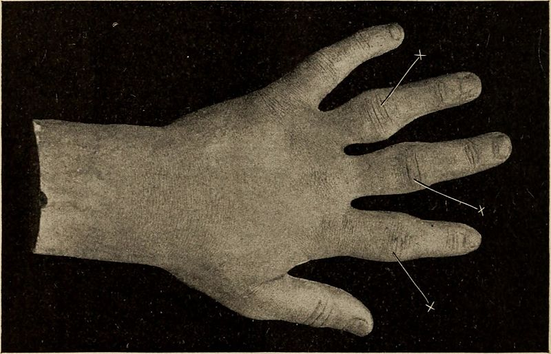 "From the Buffalo Medical Journal, 1905, c/o wiki commons: "" Fig:. 4. Infectious Arthritis: Showing early swelling- of the phalangeal joints ; X-ray of this case shows no bony change. The treatment is that of toxemia, combined with local procedures; the septicemia should be treated by tonics, good food and the eliminative functions should receive attention. Much water should be ingested…. In cases where the joint shows evidence of pus formation, it should be opened and irrigated. """