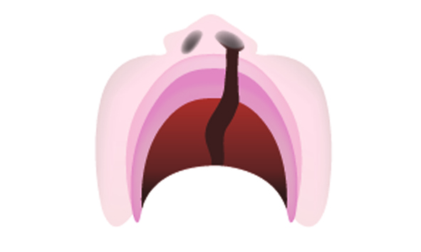 Unilateral Cleft Lip and Palate