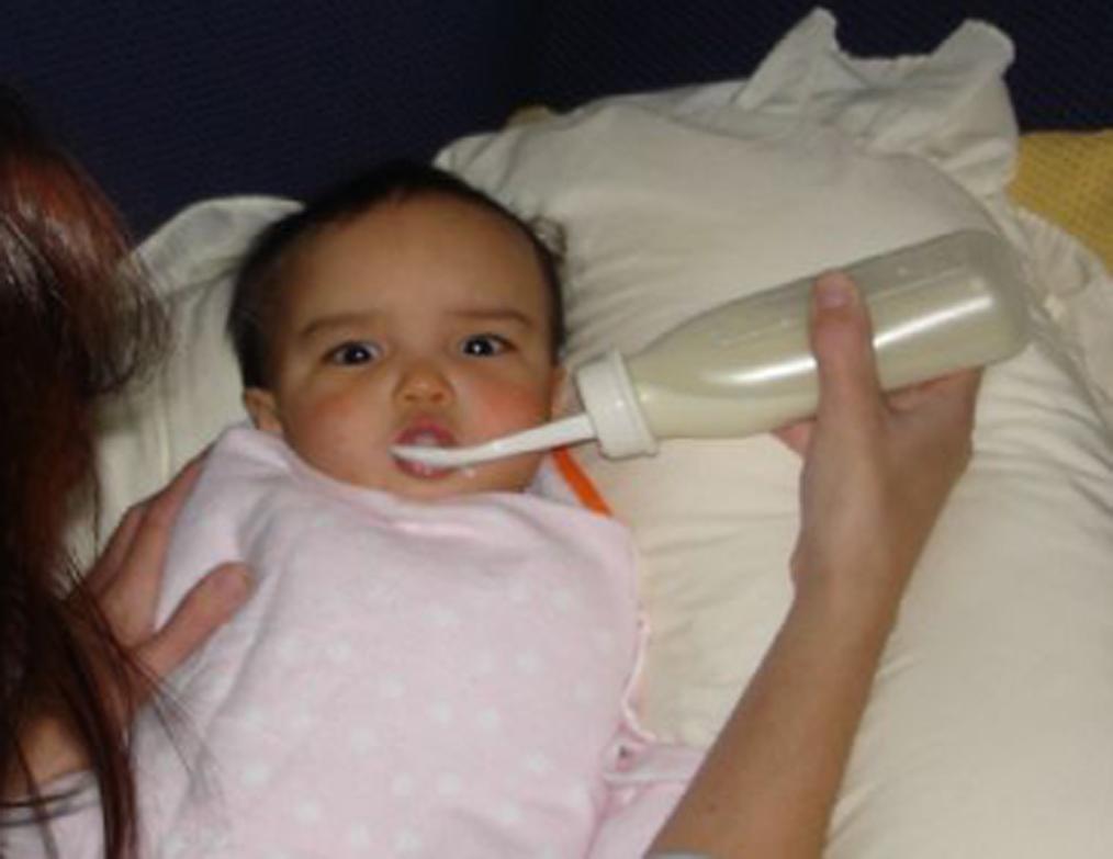 Spoon Feeding after Palate Repair