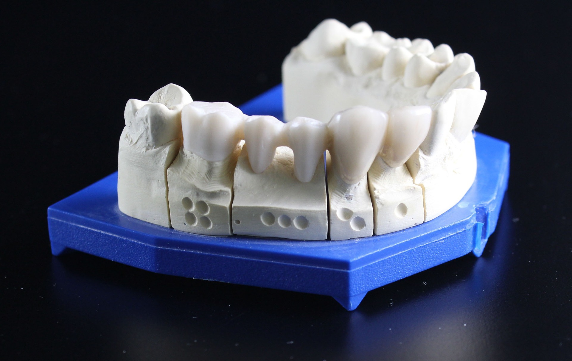 tooth-replacement-759928_1920.jpg