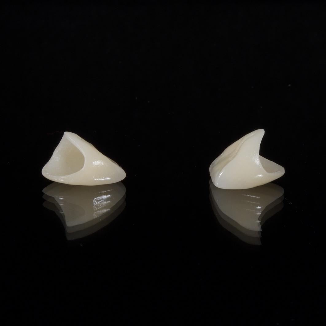 dental-2036941_1920.jpg