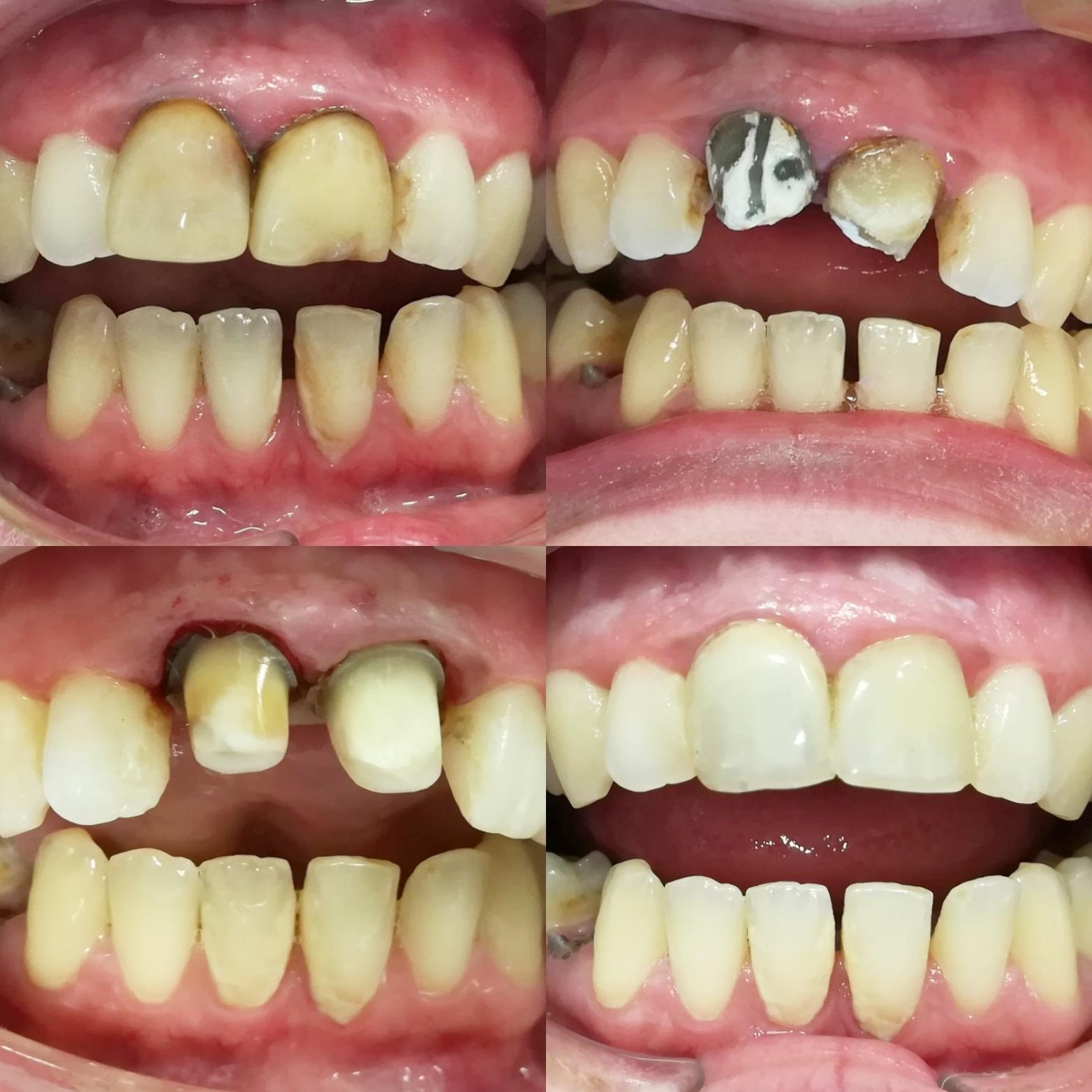 Horné zubné fazety