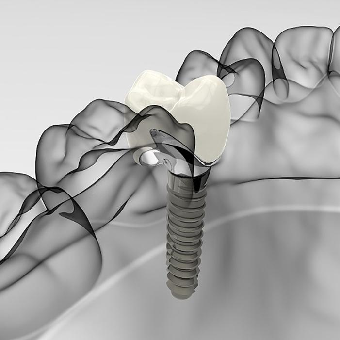 Implantológia - Kvalitná a odborne vykonaná implantológia v Bratislave.Objednajte sa k nám!