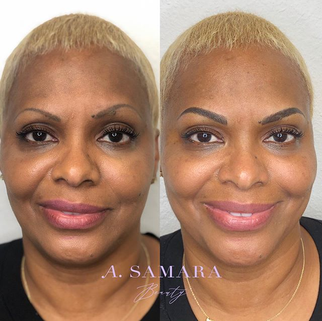 A transformational before and after  blade & shade to even out end fill the brows! My lovely client had her brows previously tattooed and she was unsatisfied with the shape and the unevenness. We Microbladed and shaded to cover up her previous tattoo as Microblading alone would not have been enough. The combination together allows for it to appear like natural hair strokes while still holding darkness at the center for the color depth ❤️ . . . Online Booking ~ asamarabeauty.com/contact . . . #milwaukeemicroblading #microbladingnearme #bestmicrobladingnearme #microbladingbrows #stylia #phibrows #beforeandafterbrows #microbladingeyebrows #eyebrows #browsonfleek #naturalmicroblading #perfectbrows #microbladingmilwaukee #microbladinginmilwaukee #chicagomicroblading #microbladingchicago #beforeandafter #boldbrows #beforeandaftermicrobladingbrows #perfectbrows #threading #eyebrows #mkebrows #mkemicroblading #microbladingmilwaukee #microbladingchicago  #healediloveink #tinadavies #permanentmakeup #mkebrows #milwaukeeeyebrows #mkeeyebrows