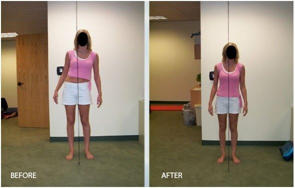 John Elder, a former Egoscue Clinic owner took these photos of his client after an hour of exercise therapy.