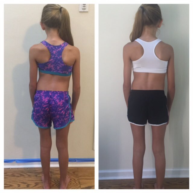Brian Bradley VP of Egoscue shared this photo on his Twitter account with the hashtag Scoliosis is NOT a death sentence. Don't just look at her spine. Check out her leg position, foot position and head position. The body works as a unit.