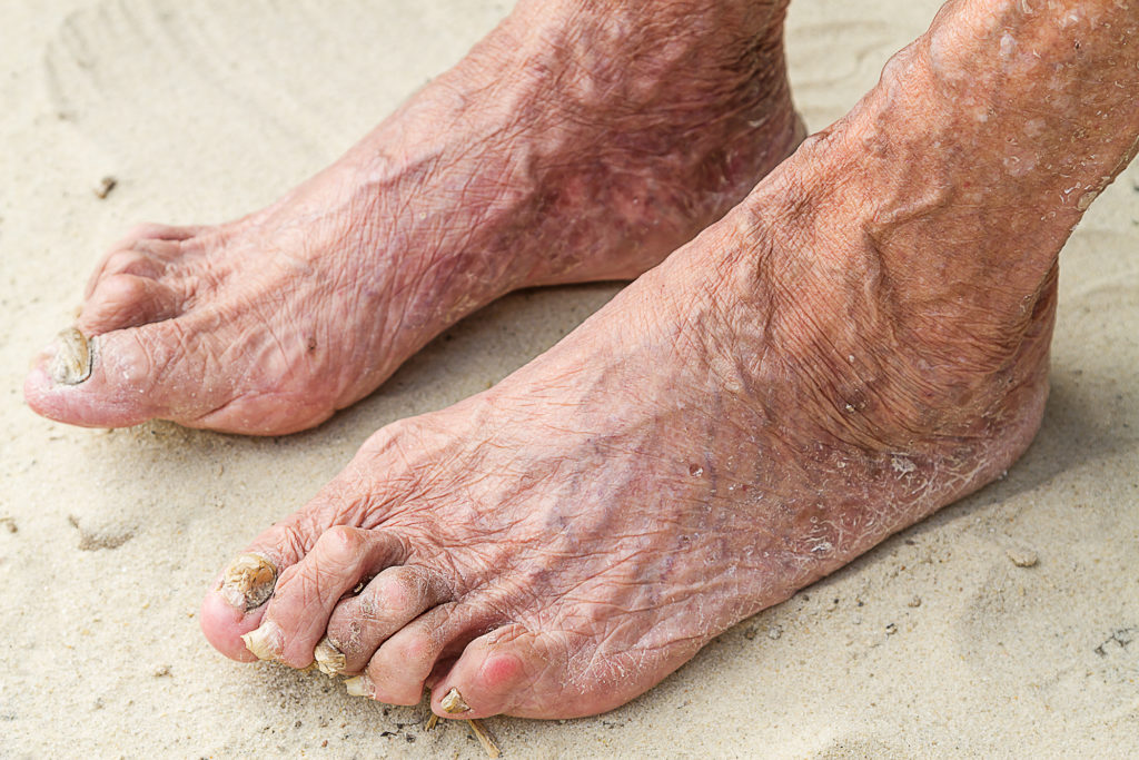 Diabetic foot treatment -