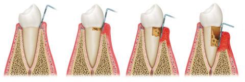 Gad_Gum_Disease_Treatments_Fotolia_49123432_BB.jpg