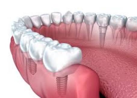 dr gary l white implant.jpg