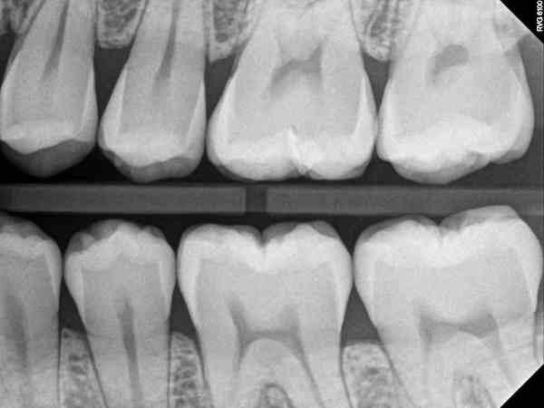 Dr Gary L White X Ray 3.jpg
