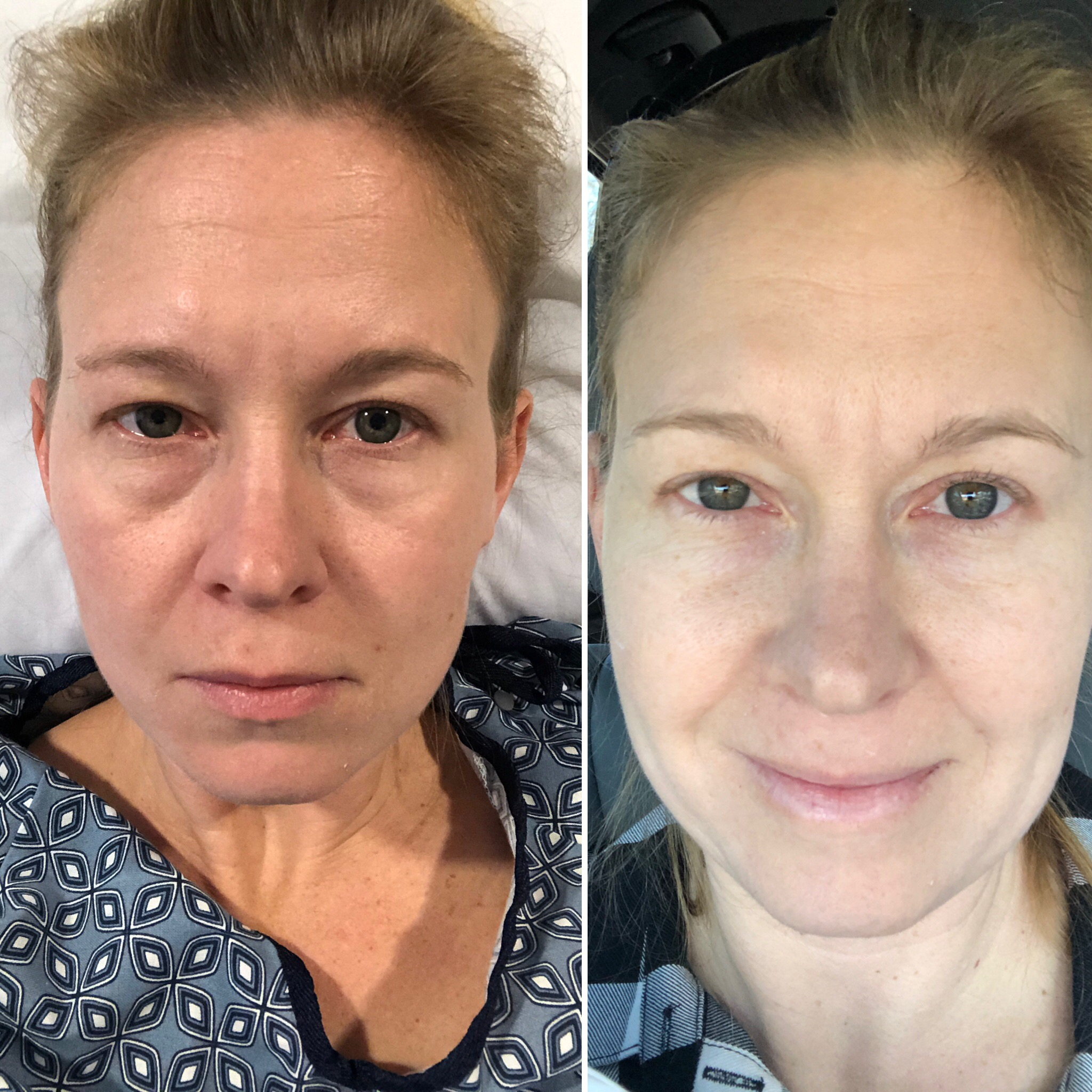 Left:  Pre-Surgery in the hospital bed  Right:  Post- A little drowsy, post-Surgery in the car on the way home.