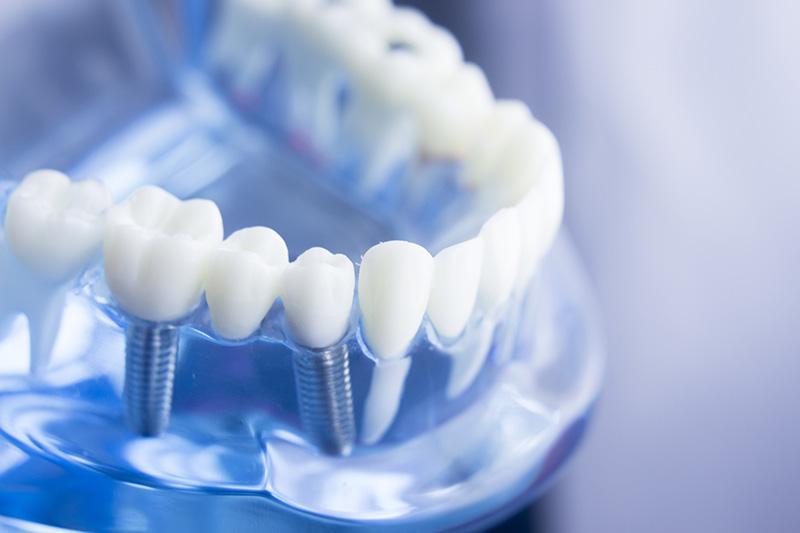 Medical Travel Shield Dental Insurance Teeth Model