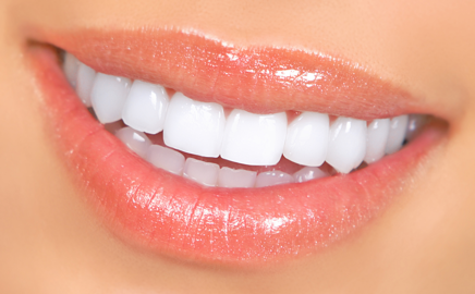 A beautiful and natural looking smile with Dental Veneers. -