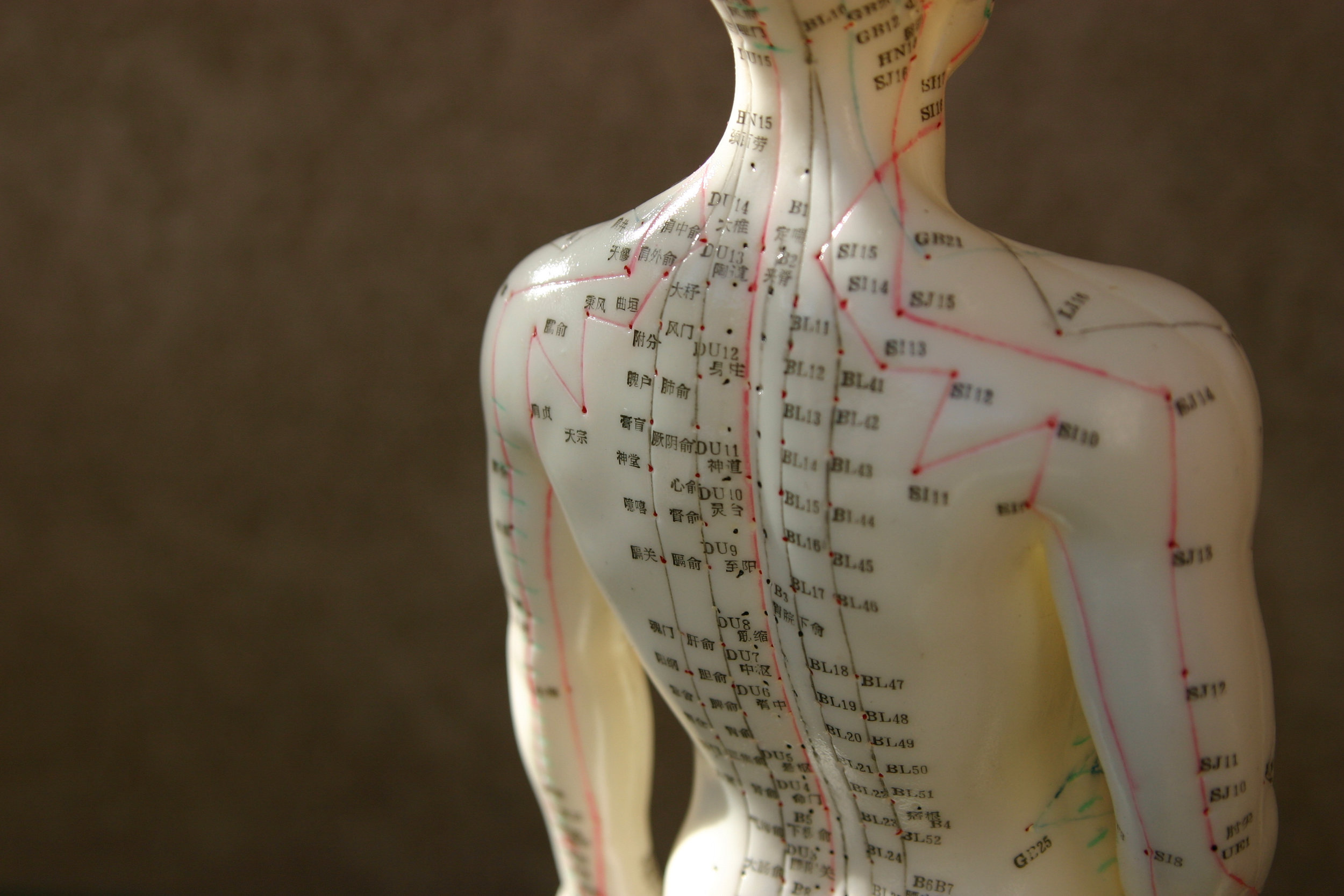 What Is Acupuncture? -