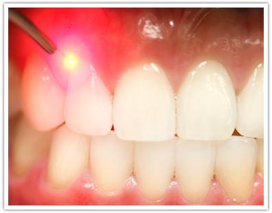 laser-dentistry.jpg