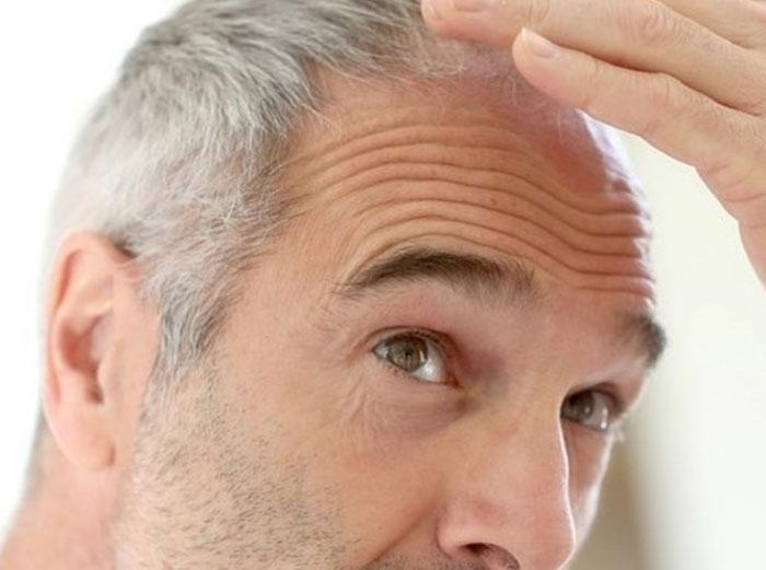 PRP-HairMen.jpg
