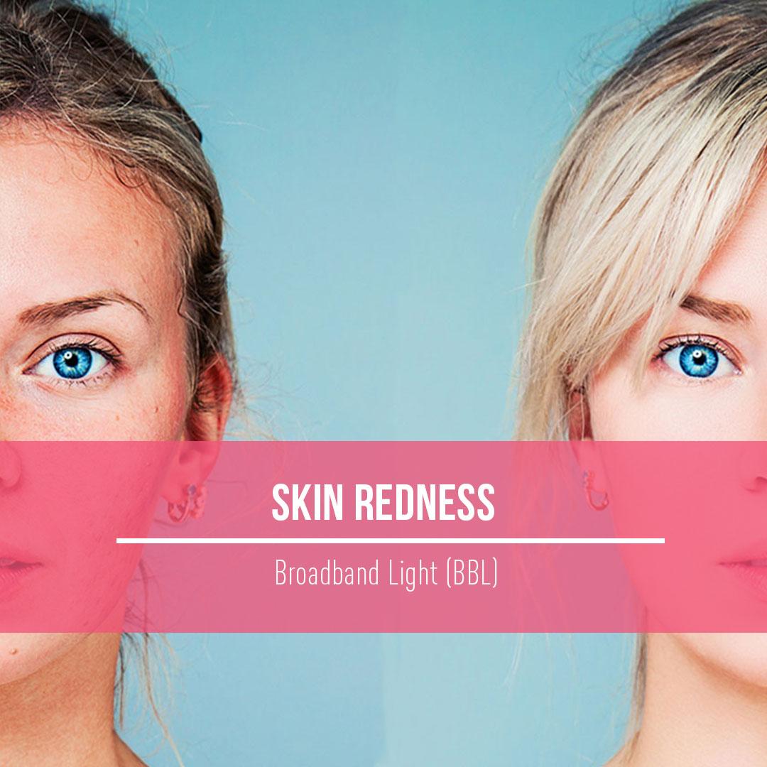 SkinRedness.jpg