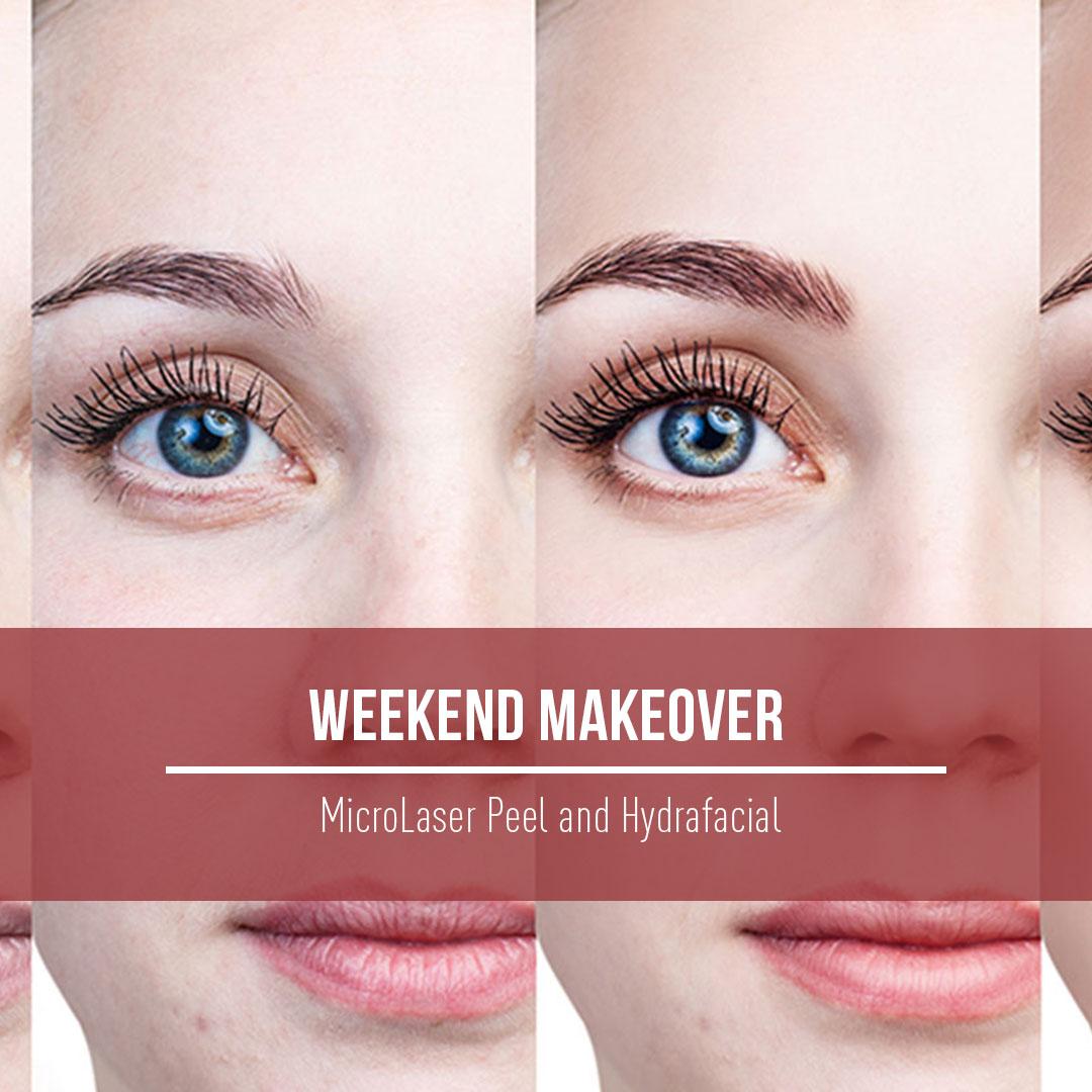 WeekewndMakeover-r1.jpg