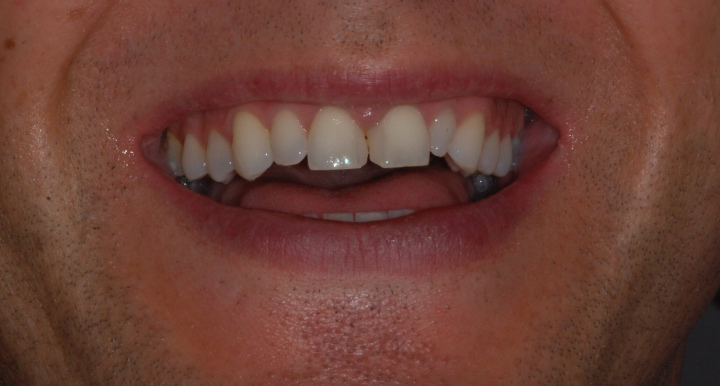 Scott's teeth before…