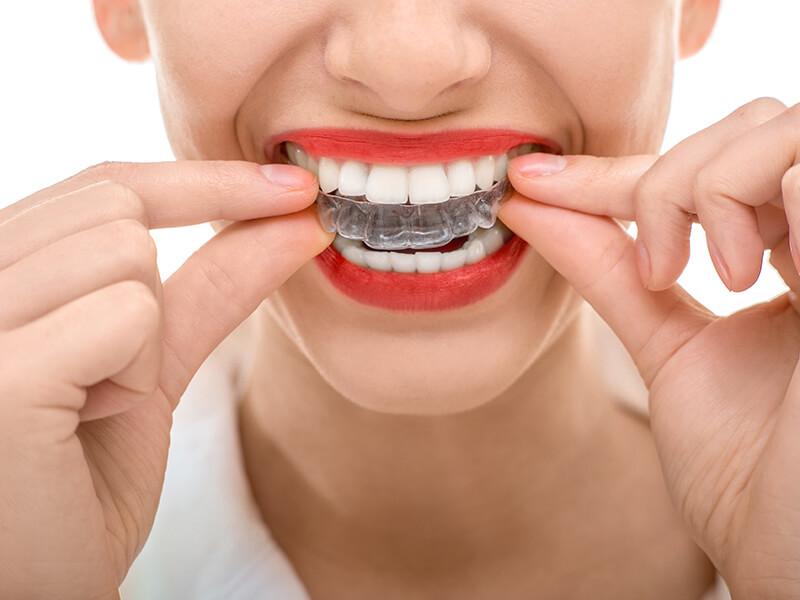 Invisalign teeth straightening is less visible than most orthodontic treatments