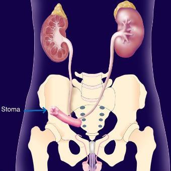 cystectomie-Bricker.jpg