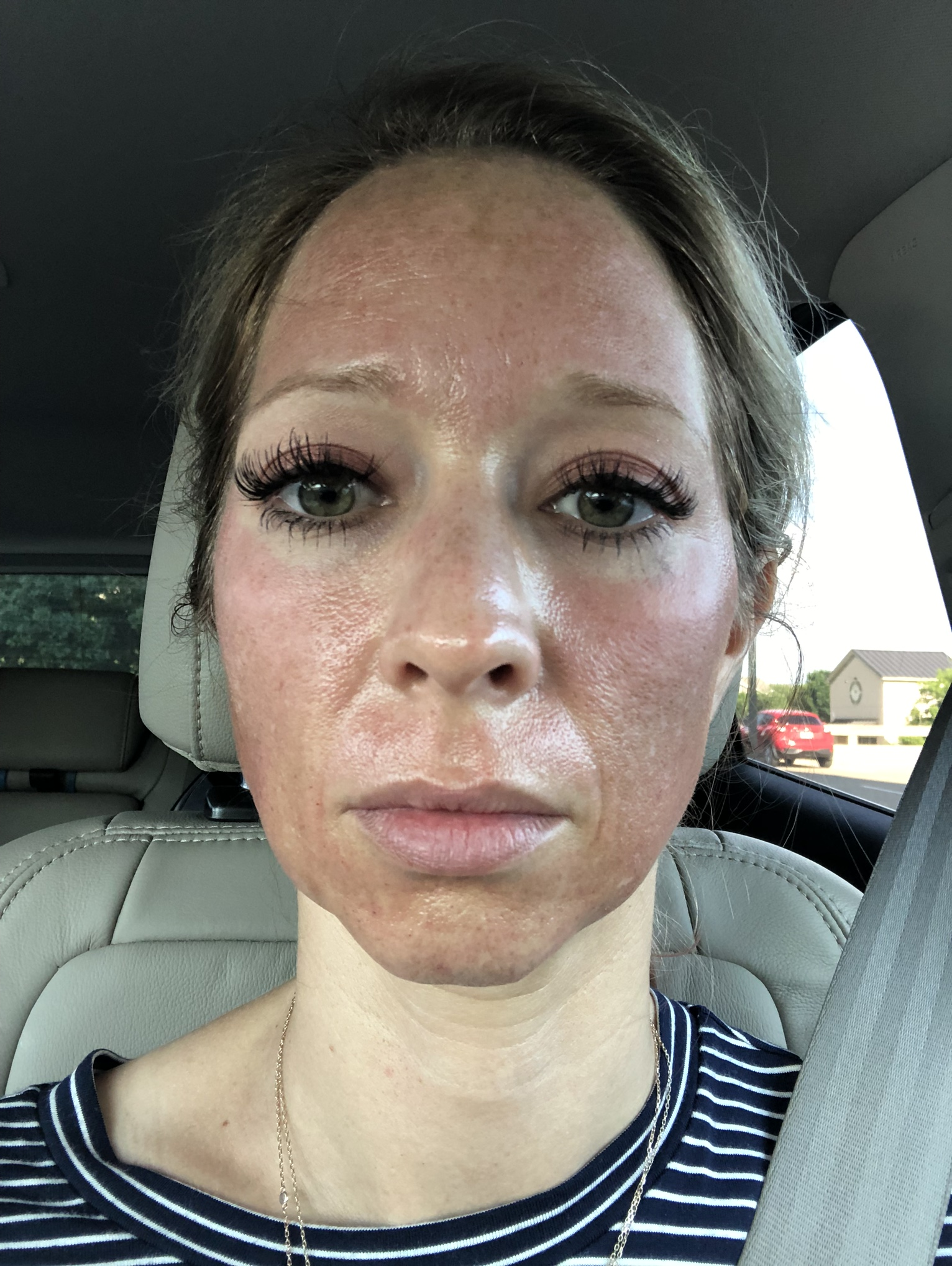 Microneedling right after treatment.