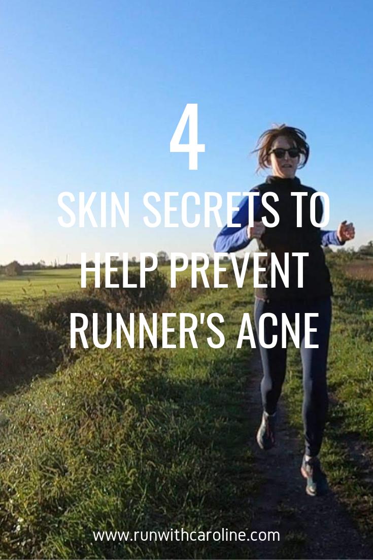 How to prevent runner acne
