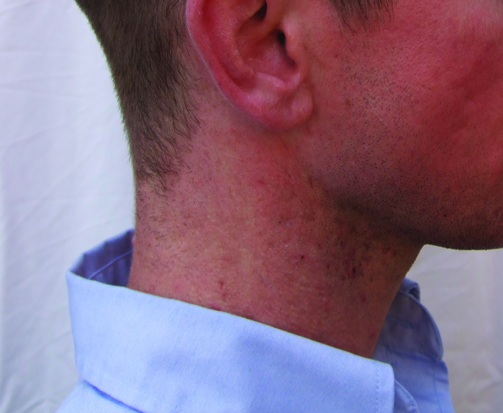 oliver after  neck 1.jpg