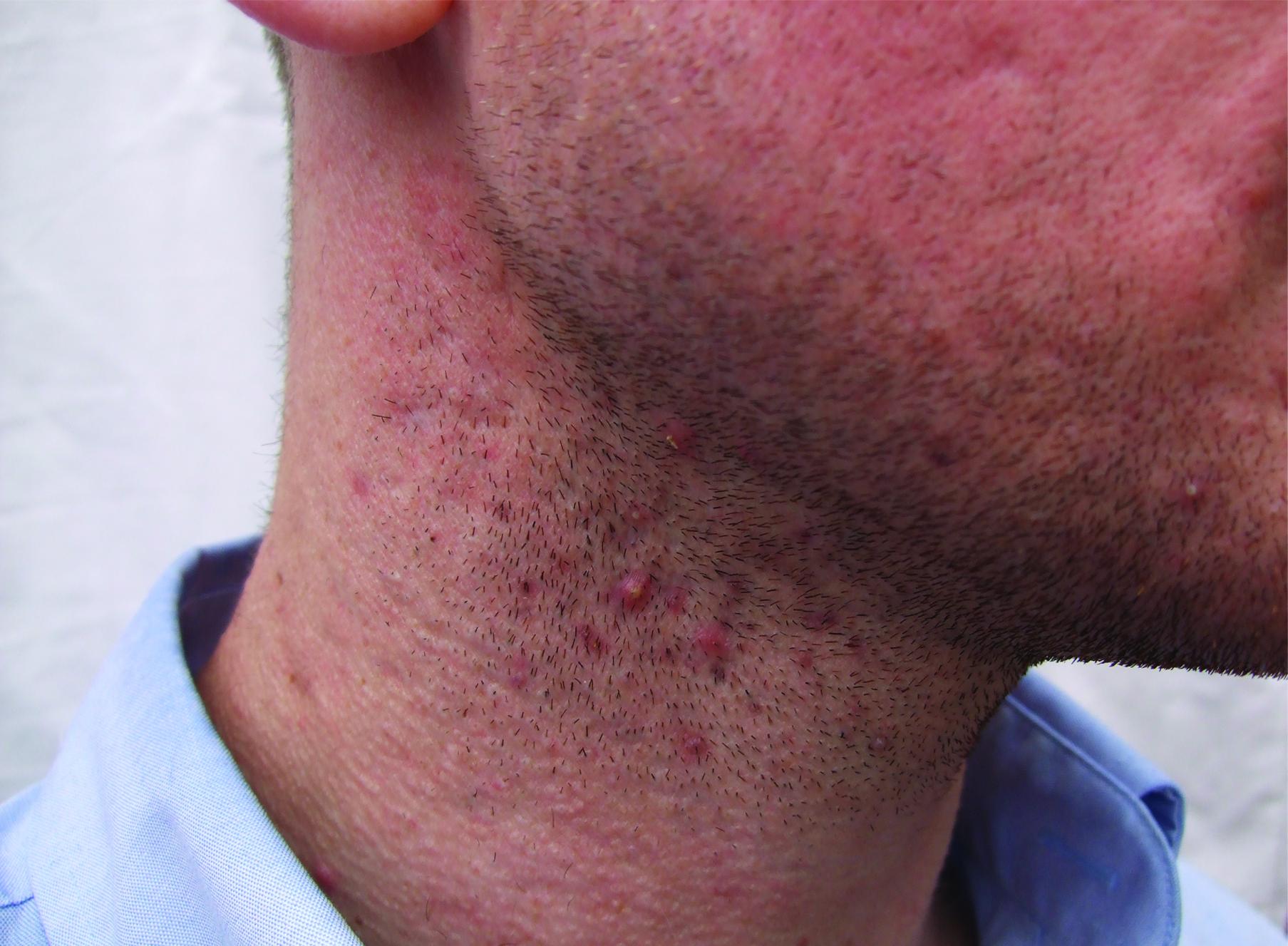 oliver Before neck 1.jpg