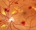Renton+Vision+Clinic+Diabetiic+Retinopathy.jpg