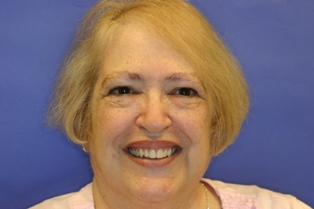 Ardent Care can help craft dentures to restore your smile.