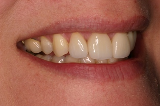 Porcelain Dental Crowns from Ardent Care can help restore your smile.