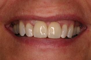 Dental implants from Ardent Care in Springfield, OR can replace missing teeth and stop bone loss.