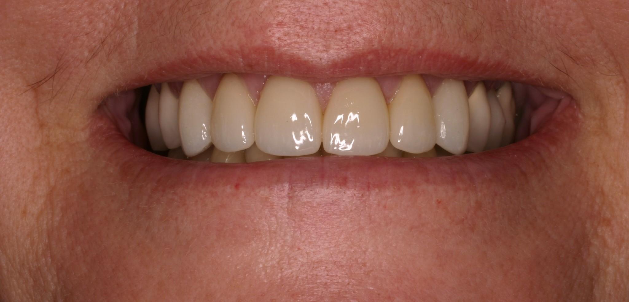 After - Porcelain Veneers & Dental Crowns