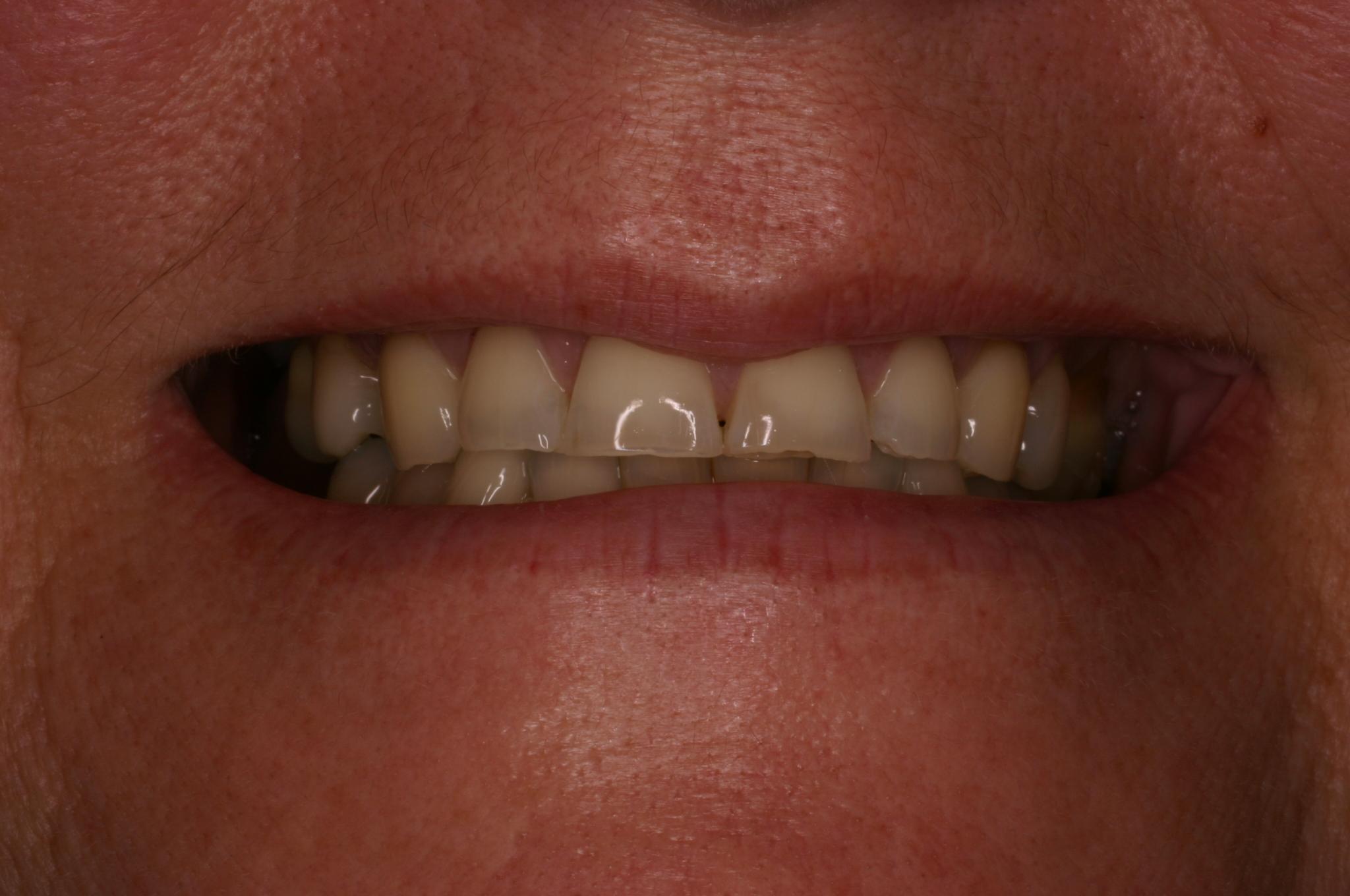 Before - Porcelain Veneers & Dental Crowns